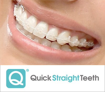 quick straight teeth