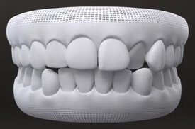 You just want straighter teeth